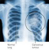 Th_lung_cancer_xray