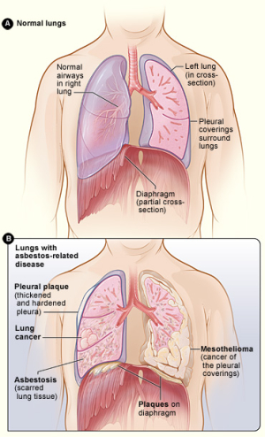 Asbestos_effect